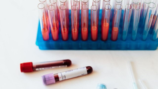 Serology Testing & Entry into Israel